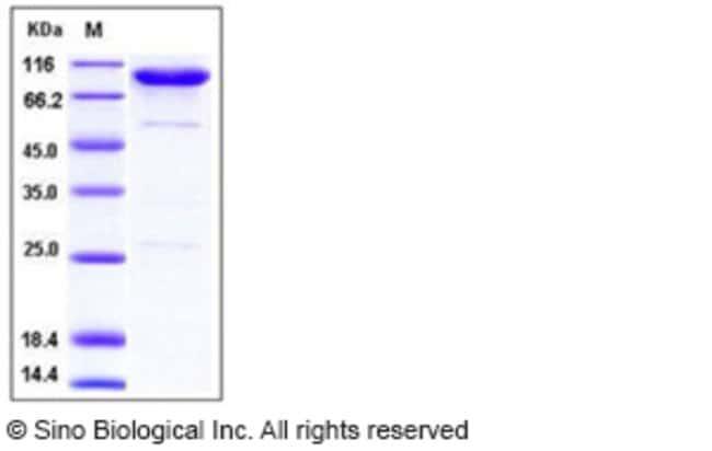 Sino Biological Human CD55 / DAF Protein (Fc Tag)  HUMAN CD55/DAF,50UG