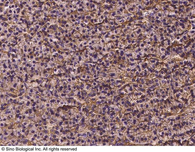 Sino Biological VDR Antibody, Rabbit PAb, Antigen Affinity Purified  VDR