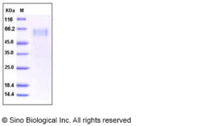 Sino Biological Human IL1RL1 / DER4 Protein  HUMAN IL1RL1/DER4,50UG