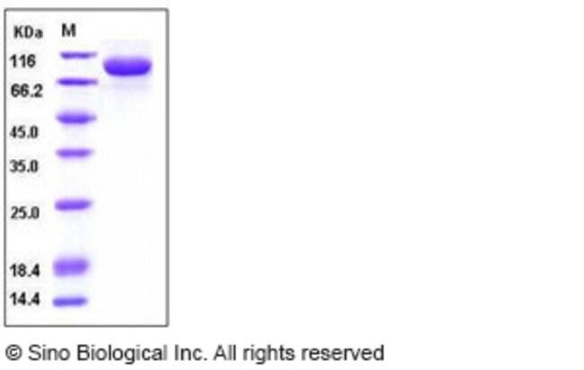 Sino Biological Human IL-1RAcP / IL-1R3 Protein (His & Fc Tag)  HUMAN IL-1RACP/IL-1R3,200UG