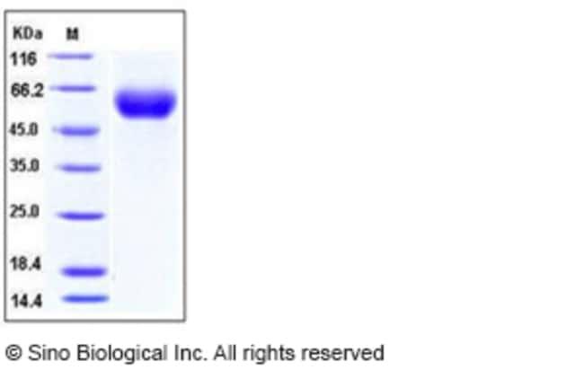 Sino Biological Human IL-1RAcP / IL-1R3 Protein (His Tag)  HUMAN IL-1RACP/IL-1R3,200UG