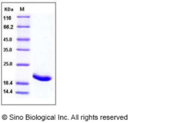 Sino Biological Human IL-1RA / IL1RN Protein  HUMAN IL-1RA/IL1RN,100UG