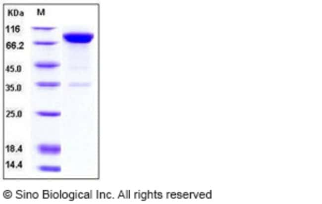 Sino Biological Human IL1R1 / CD121a Protein (Fc Tag)  HUMAN IL1R1/CD121A,50UG