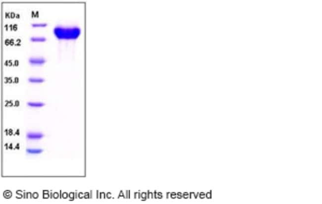 Sino Biological Human PIGR Protein (365 Ser/Gly, His Tag)  HUMAN PIGR (365
