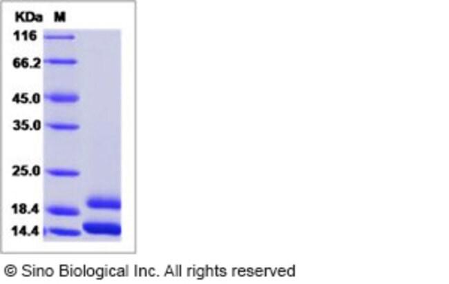 Sino Biological Human CCL2 / MCP-1 / MCP1 Protein (His Tag)  HUMAN CCL2/MCP-1/MCP1,50UG