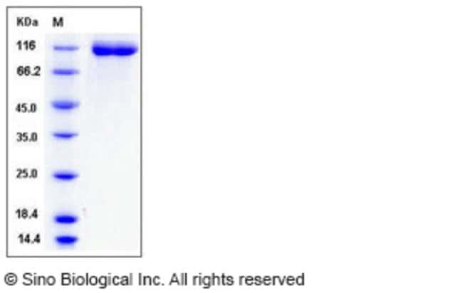 Sino Biological Human VEGFR1 / FLT-1 Protein (His Tag)  HUMAN VEGFR1/FLT-1,50UG
