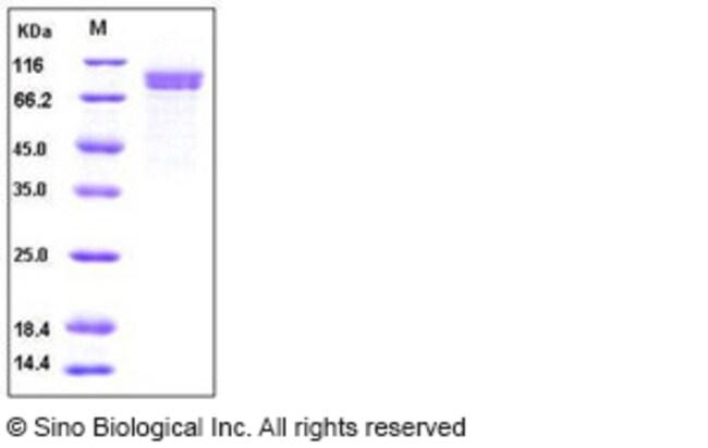 Sino Biological Human Cadherin-8 / CDH8 Protein (His Tag)  HUMAN CADHERIN-8/CDH8,10UG