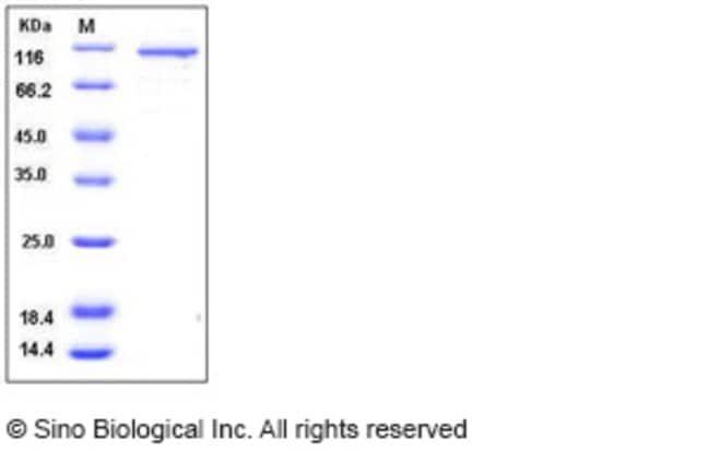 Sino Biological Human RSK4 / RPS6KA6 Protein (GST Tag)  HUMAN RSK4/RPS6KA6,50UG