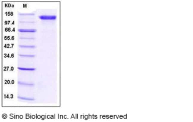 Sino Biological Human CD31 / PECAM1 Protein (Fc Tag)  HUMAN CD31/PECAM1,200UG