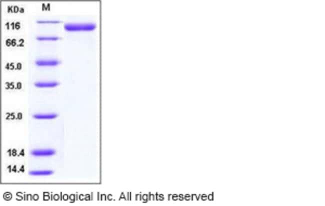 Sino Biological Human CD31 / PECAM1 Protein (His Tag)  HUMAN CD31/PECAM1,100UG
