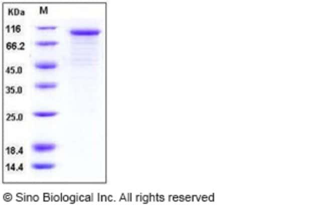Sino Biological Human Cadherin-6 / CDH6 Protein (His Tag)  HUMAN CADHERIN-6/CDH6,50UG