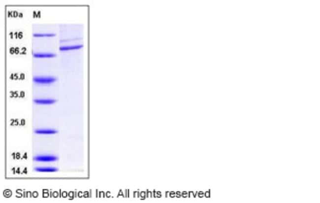 Sino Biological Human CSF1R / MCSF Receptor / CD115 Protein (His & GST