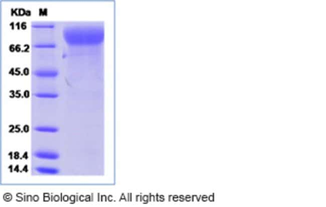 Sino Biological Human MCSF Receptor / CSF1R / CD115 protein  HUMAN MCSFR/CSF1R,100UG