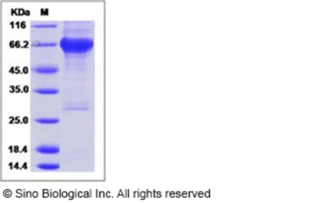 Sino Biological Human IGF1R / CD221 Protein (His & GST Tag)  HUMAN IGF1R/CD221,50UG