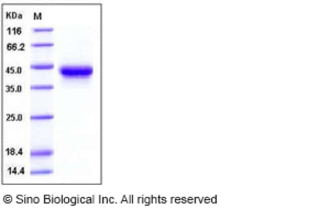 Sino Biological Human IL2Ra / CD25 Protein (His Tag)  HUMAN IL2RA/CD25,50UG