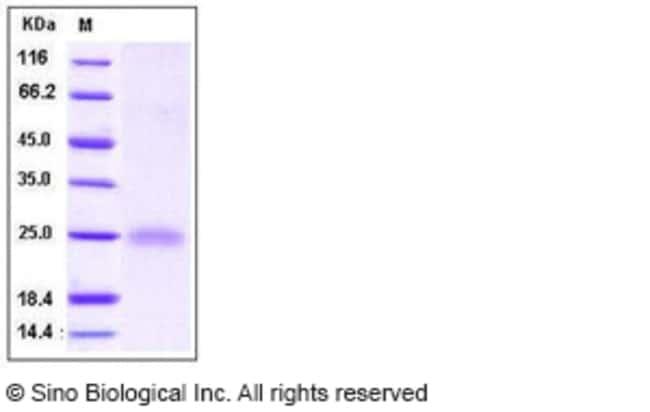 Sino Biological Human Cystatin 7 / CST7 Protein  HUMAN CYSTATIN 7/CST7,20UG