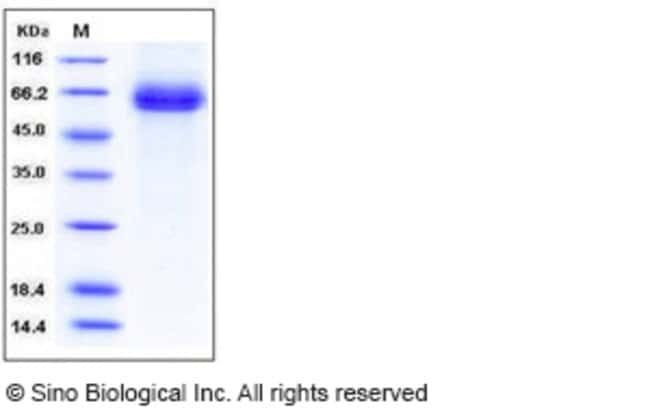 Sino Biological Human DLL4 / Delta4 Protein (His Tag)  HUMAN DLL4/DELTA4,100UG