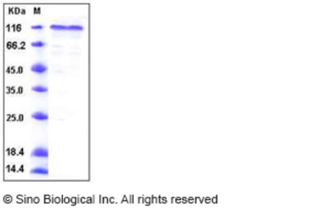 Sino Biological Human COMP Protein (His Tag)  HUMAN COMP,100UG