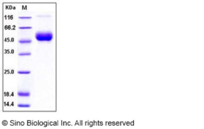Sino Biological Human IL-1R8 / IL1RAPL1 Protein (His Tag)  HUMAN IL-1R8/IL1RAPL1,10UG