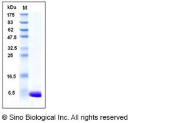 Sino Biological Human S100A1 Protein  HUMAN S100A1,100UG