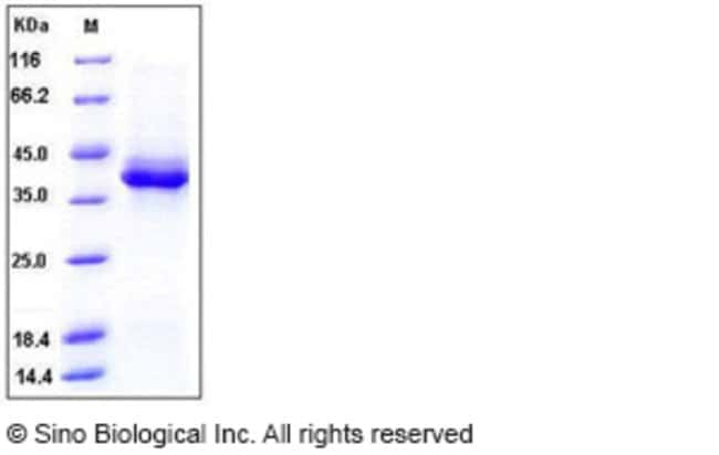Sino Biological Human S100B Protein (Fc Tag)  HUMAN S100B,100UG