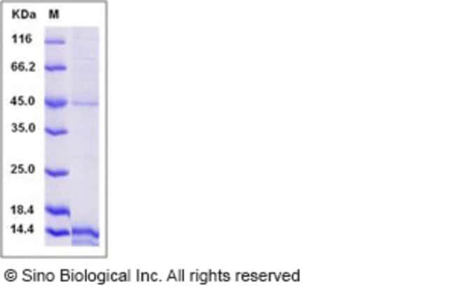 Sino Biological Human EG-VEGF / prokineticin-1 Protein (His Tag)  HUMAN