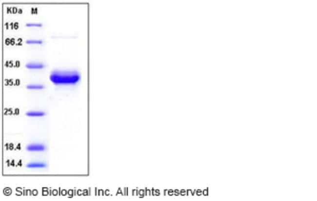 Sino Biological Human S100A4 Protein (Fc Tag)  HUMAN S100A4,50UG