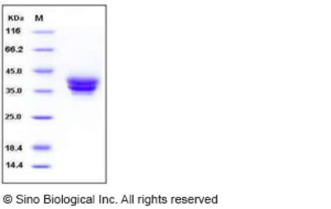 Sino Biological Human ESAM / Endothelial Cell Adhesion Molecule Protein