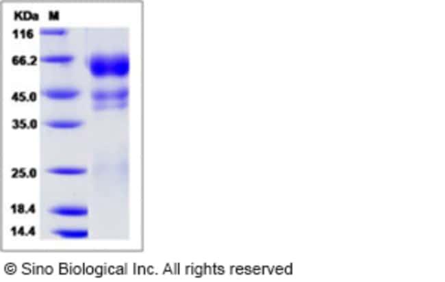 Sino Biological Human PROC1 / Protein C / PROC Protein (His Tag)  HUMAN