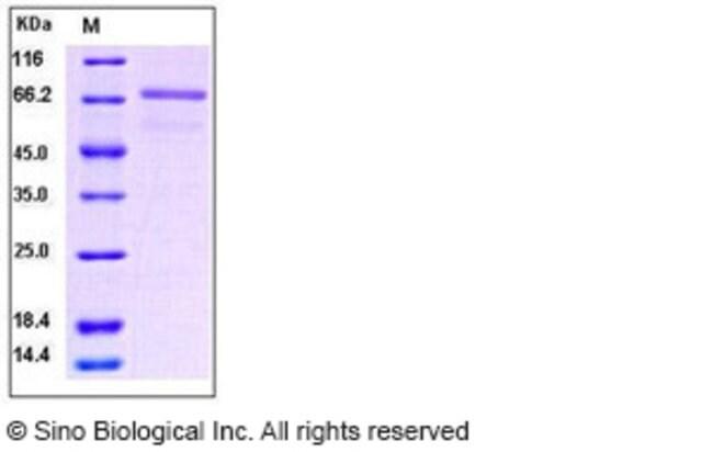 Sino Biological Human EphB6 / EphB6 Protein  HUMAN EPHB6/EPHB6,100UG
