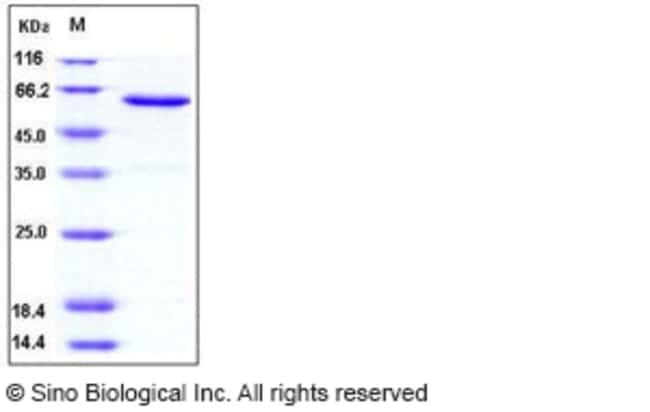 Sino Biological Human JAM-A / F11R Protein (Fc Tag)  HUMAN JAM-A/F11R,50UG