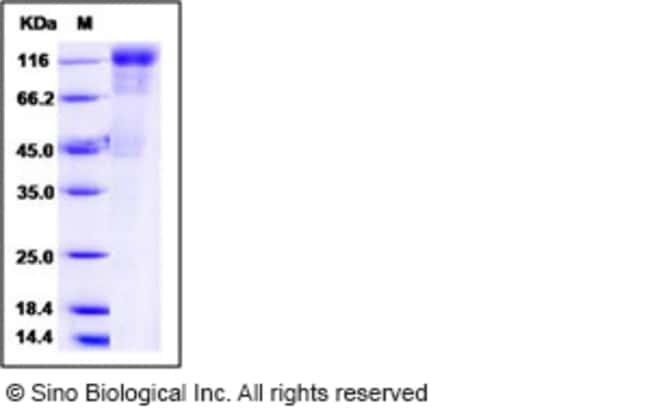 Sino Biological Human cytomegalovirus (HCMV) Glycoprotein B / gB Protein