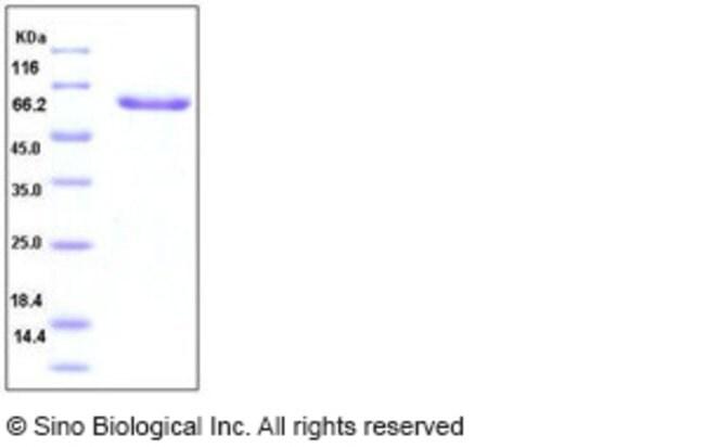Sino Biological Human Layilin / LAYN Protein (Fc Tag)  HUMAN LAYILIN/LAYN,20UG