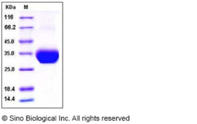 Sino Biological Human Layilin / LAYN Protein (His Tag)  HUMAN LAYILIN/LAYN,50UG