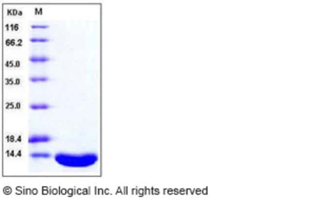 Sino Biological Human Leptin Protein  HUMAN LEPTIN,2MG