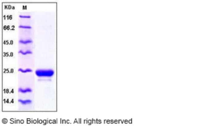 Sino Biological Human LCN2 / NGAL Protein (His Tag)  HUMAN LCN2/NGAL,100UG