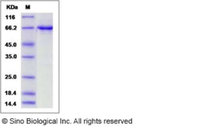 Sino Biological Human EphB4 / HTK Protein (aa 563-987, His & GST Tag)