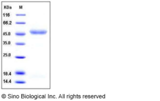Sino Biological Human IL11RA / IL11Rα Protein (His Tag)  HUMAN IL11RA/IL11R?,50UG