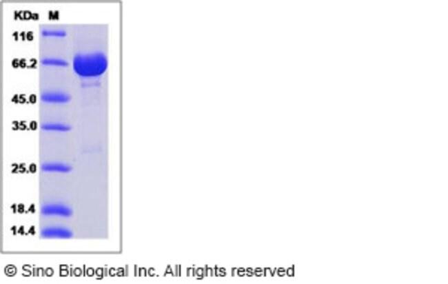 Sino Biological Human Neurolysin / NLN Protein (His Tag)  HUMAN NEUROLYSIN/NLN,20UG