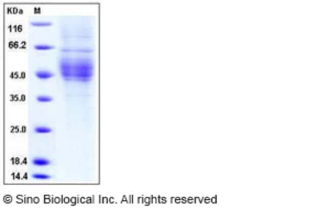 Sino Biological Human CD64 / FCGR1A Protein (His Tag)  HUMAN CD64,50UG