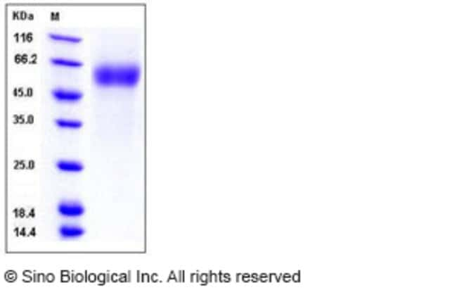 Sino Biological Human CD64 / FCGR1A Protein (His & AVI Tag), Biotinylated