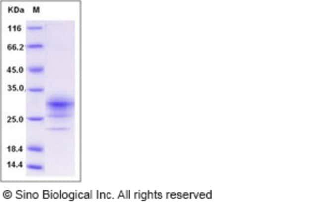 Sino Biological Human CD32b / FCGR2B Protein (His Tag)  HUMAN CD32B/FCGR2B,50UG