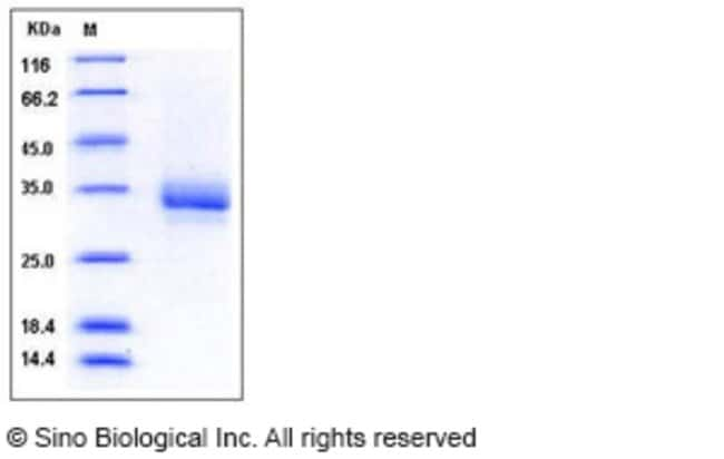 Sino Biological Human CD32b / FCGR2B Protein (His & AVI Tag)  HUMAN CD32B/FCGR2B,100UG
