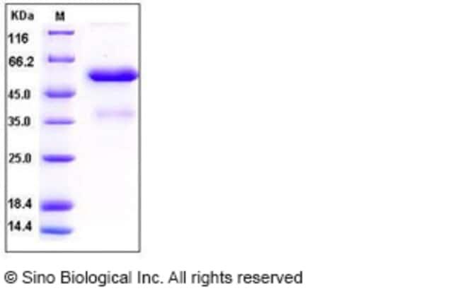 Sino Biological Human FGF9 Protein (Fc Tag)  HUMAN FGF9,5UG
