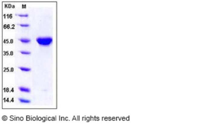 Sino Biological Human PDGF-C Protein (Fc Tag)  HUMAN PDGF-C,5UG