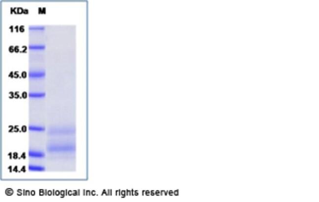Sino Biological Human PDGF-C Protein (His Tag)  HUMAN PDGF-C,20UG