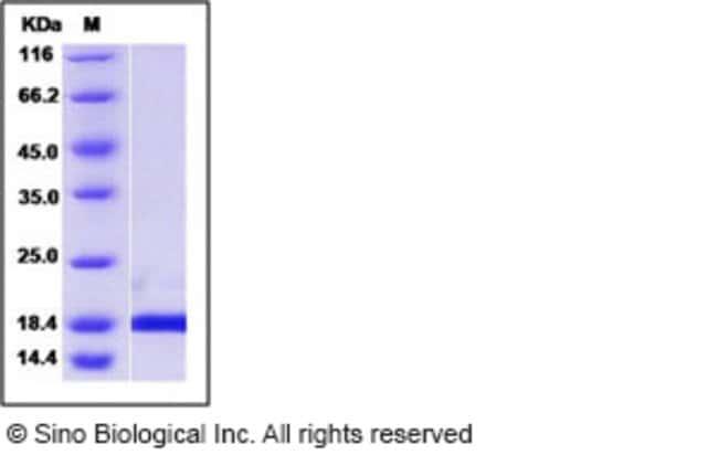 Sino Biological Human PIN1 / Rotamase Pin1 Protein  HUMAN PIN1/ROTAMASE
