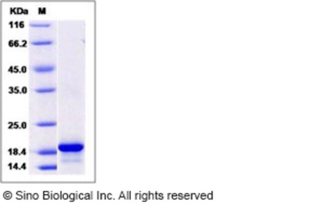 Sino Biological Human Pleiotrophin / PTN / HB-GAM Protein  HUMAN PLEIOTROPHIN/PTN,100UG
