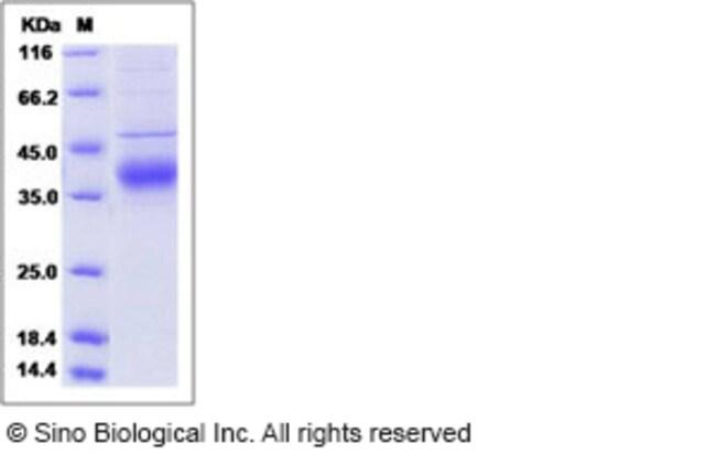 Sino Biological Human Angiopoietin 4 / ANG4 / ANGPT4 Protein (His Tag)