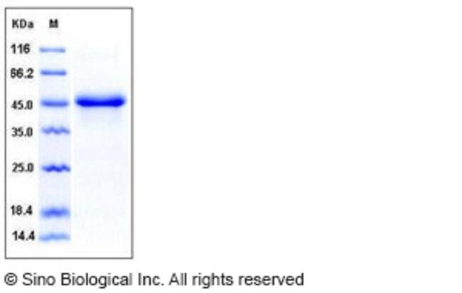 Sino Biological Human SerpinE1 / PAI-1 Protein (His Tag)  HUMAN SERPINE1/PAI-1,10UG